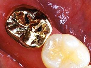 Gold Tooth Crown