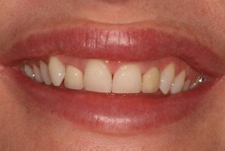 Teeth Before Photo