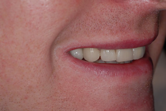 veneers london after