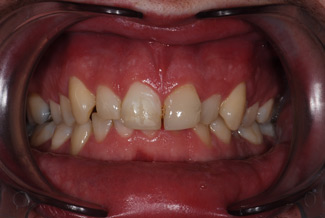 veneers dentist london before