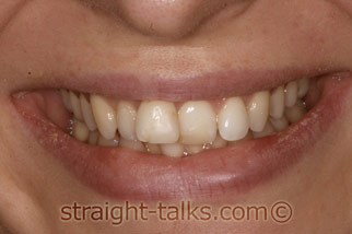 inman aligner before london