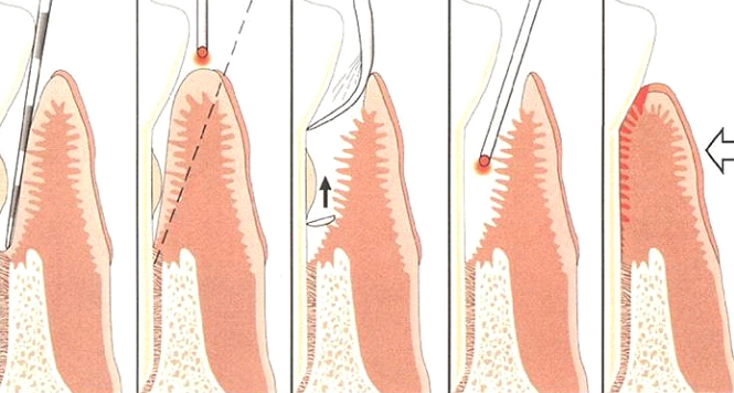 Laser Assisted Periodontal GumTreatment Step by Step