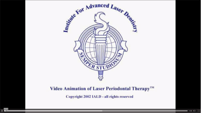 Laser-Assisted Periodontal Treatment Video