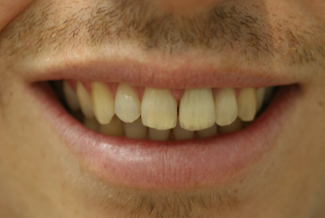 Cosmetic Dental Treatment After