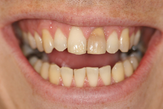 Cosmetic Dental Treatment Before