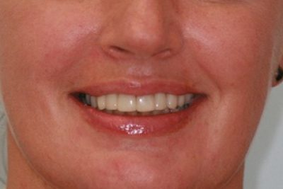 After Dental Crowns Treatment