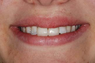 Dental Crown London Treatment After
