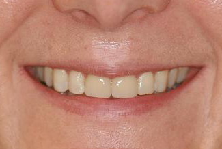 Cosmetic Dental London Treatment After