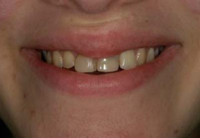 Dental Crown London Treatment Before