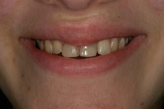 Dental Crown London Treatment Before