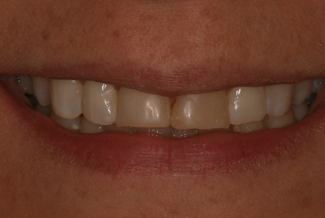 Cosmetic Dental London Treatment Before
