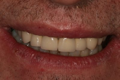 Dental Crown in London Treatment After