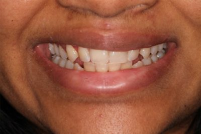 Cosmetic Dentist London After