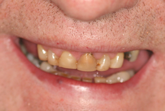 Dental Crown in London Treatment Before