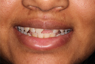Cosmetic Dentist London Before