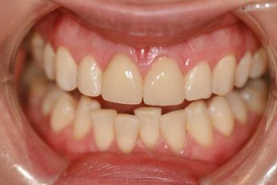 veneers_london_after