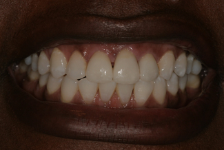 Treatment for Dental Crowns in London After
