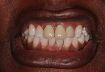 Treatment for Dental Crowns in London Before