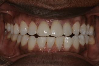 Treatment for Dental Crowns After