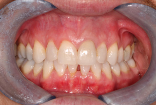 London Cosmetic Dentist Treatment After