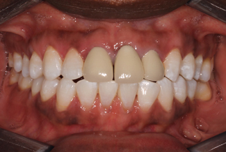 Treatment for Dental Crowns Before