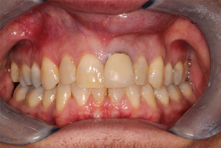 London Cosmetic Dentist Treatment Before