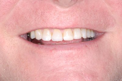 Composite Veneers London After
