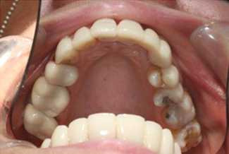 After Dental Crowns Treatment London