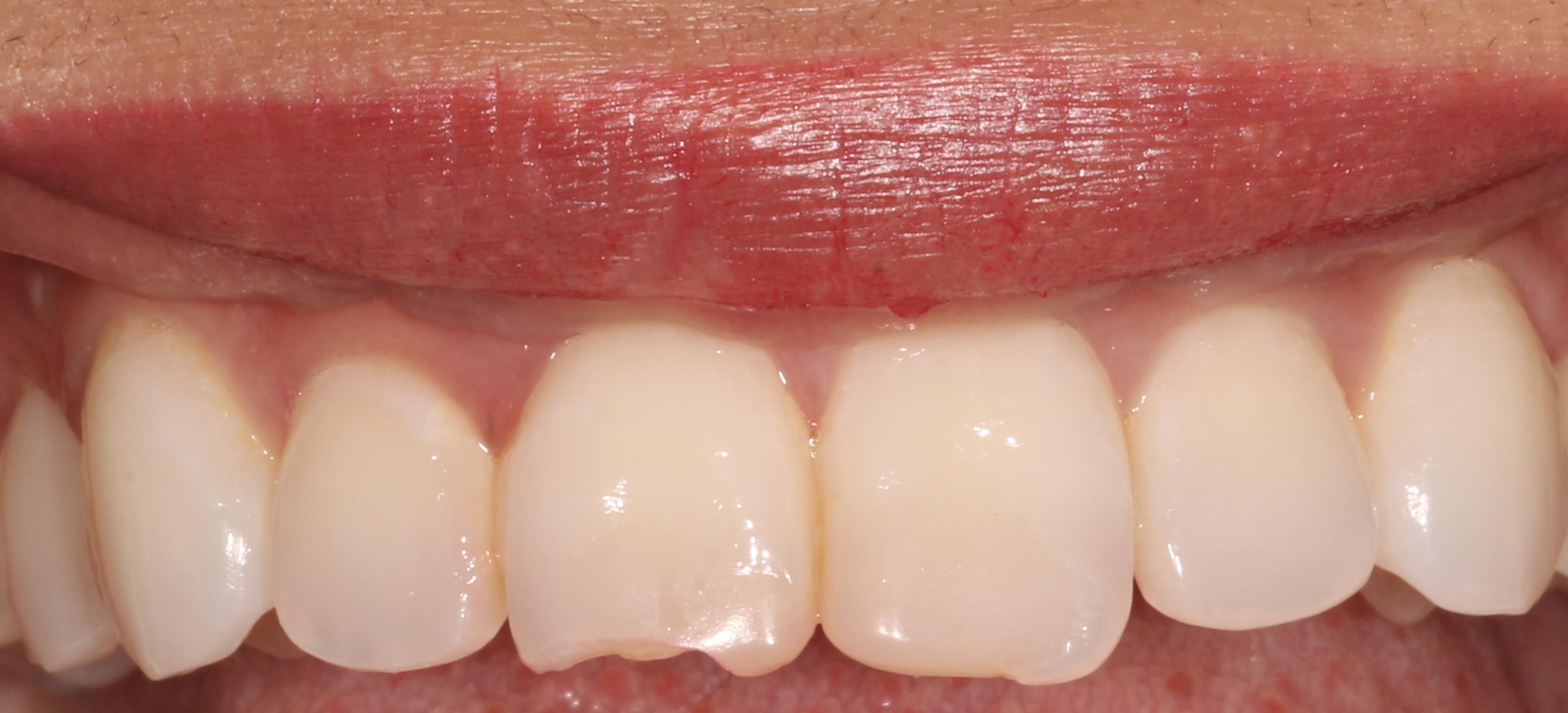 Composite Veneers Dentist London