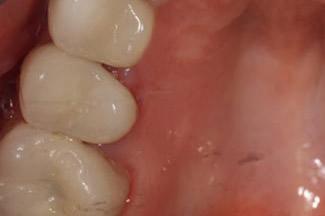 Dental Crowns London After