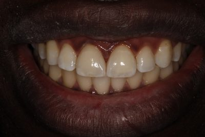 Porcelain Veneers London Dentist