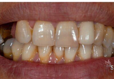 before enlighten teeth whitening london dentist