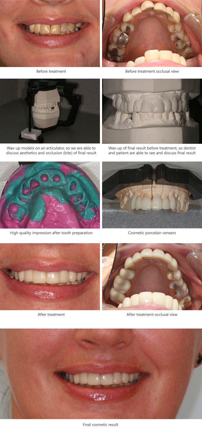 Pre restorative orthodontic alignment Before and After