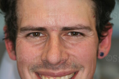 London Dentist Smile Makeover After