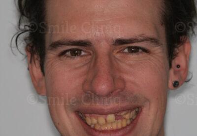 London Dentist Smile Makeover Before