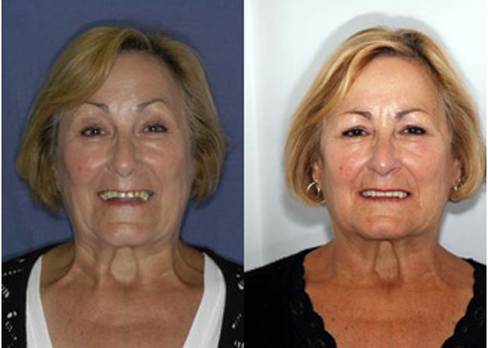 Dental Crowns London Before and After