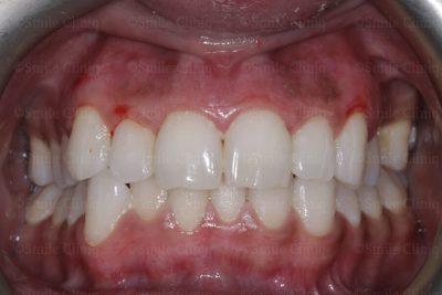 After gum lasering