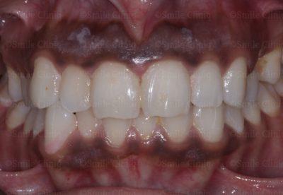 Before gum lasering