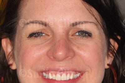 London Dentist Veneers After