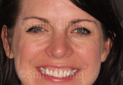 London Dentist Veneers Before