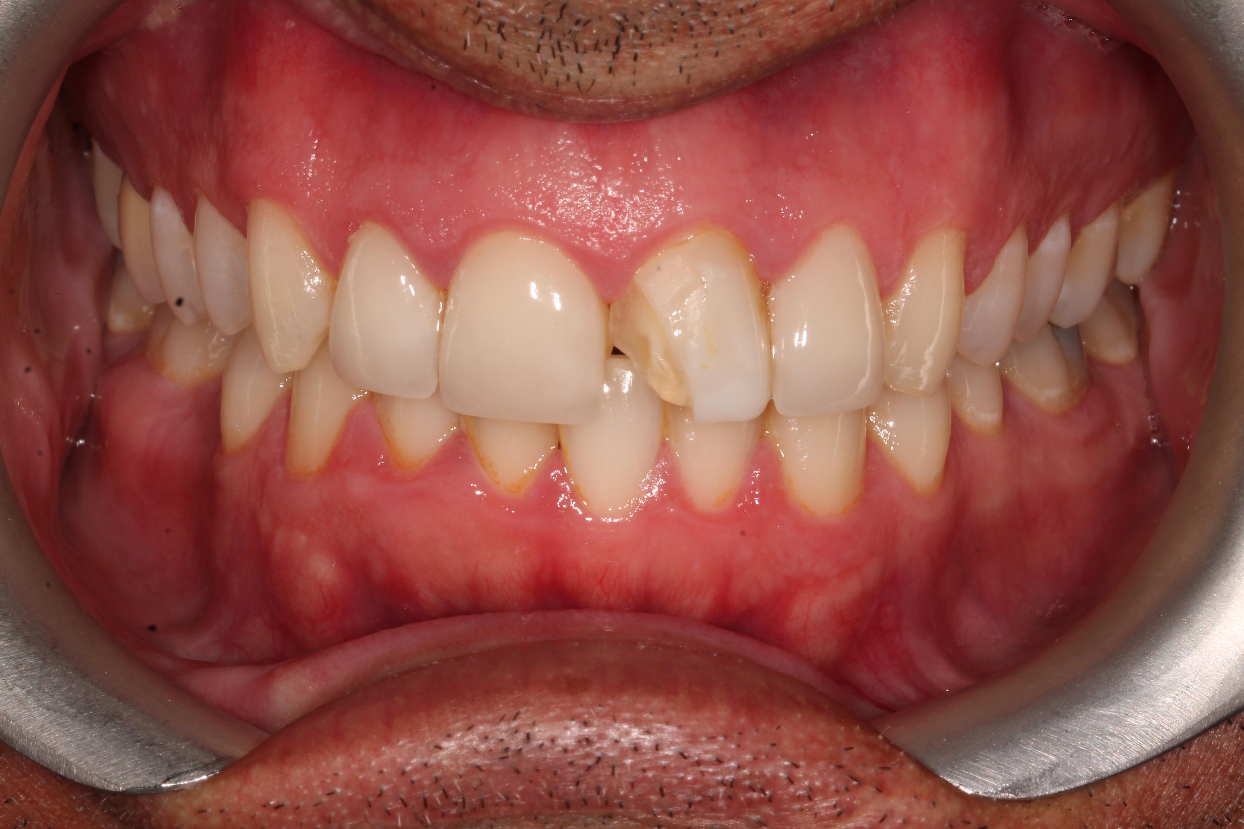 veneer_london_cosmetic_dentist_before