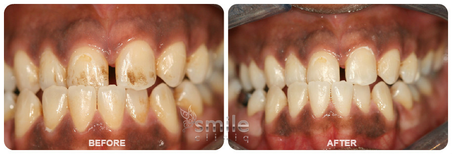 Dental Hygiene Before and After Treatment
