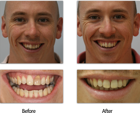 Dark Tooth London Treatment Before and After