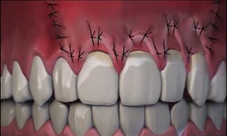 Receding Gum Treatment Graphic Before