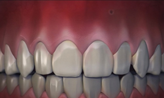 Receding Gum Treatment Graphic After