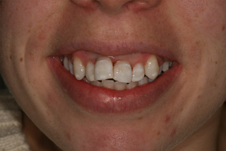 Dark Teeth Treatment After