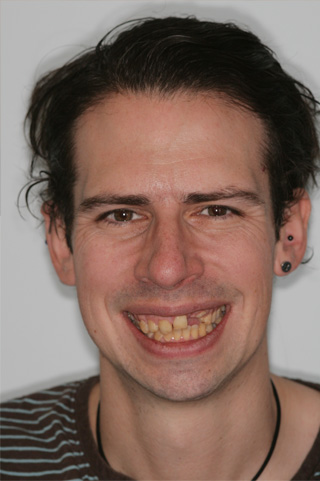 Dental Implants London Dentist Before