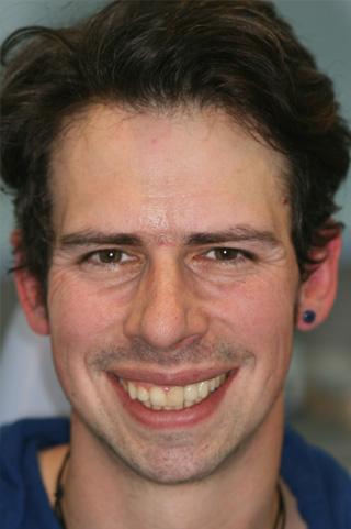 Dental Implants London Dentist After