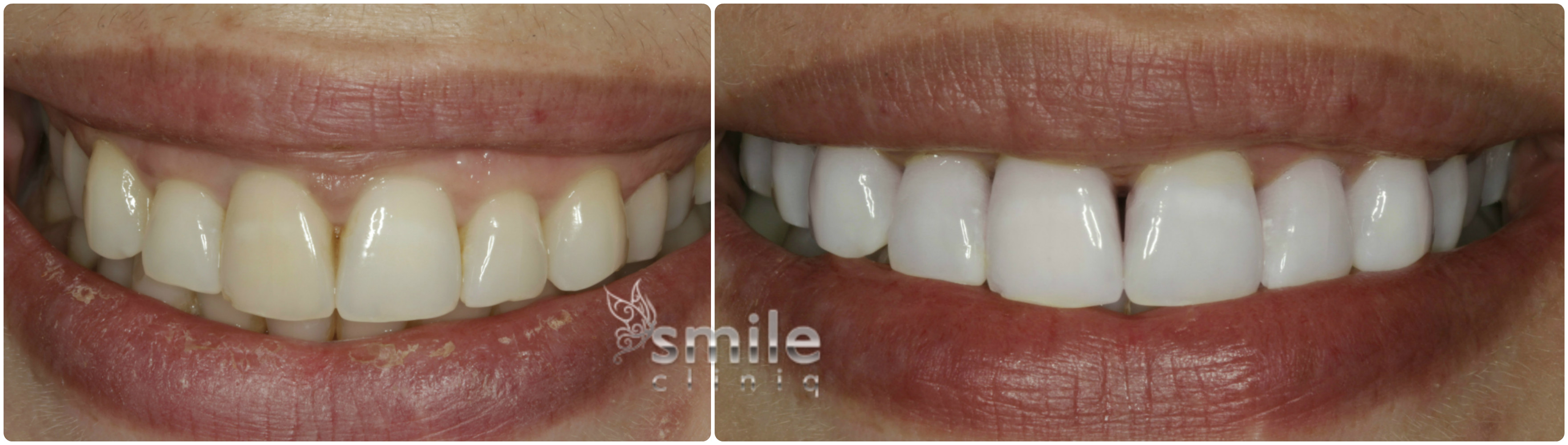 Enlighten Tooth Whitening Before and After