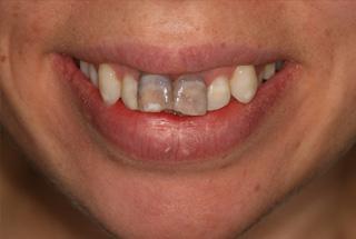 Dark Teeth Treatment Before